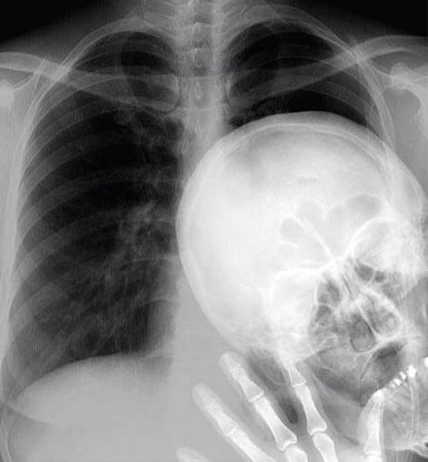 """Những hình chụp X quang kỳ lạ nhưng thú vị sau đây sẽ cho bạn cơ hội nhìn mọi vật từ """" tận sâu bên trong"""", thử xem bạn nhìn ra là gì không nhé? - Ảnh 6."""