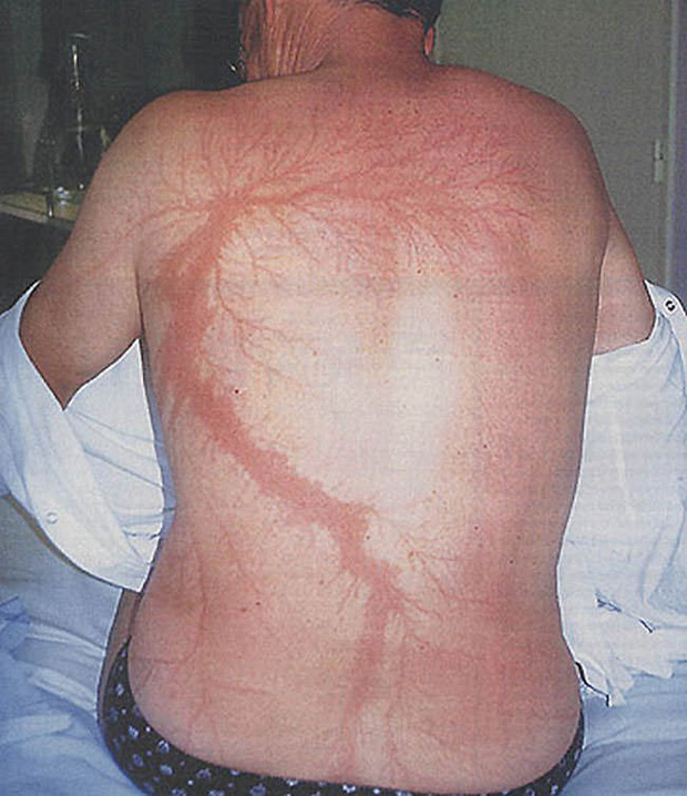 Kỳ lạ người đàn ông bị sét đánh 7 lần liên tục, cơ thể tổn thương từ bên ngoài đến nội tạng vẫn không chết, được người ta mệnh danh là vua lỳ đòn - Ảnh 3.