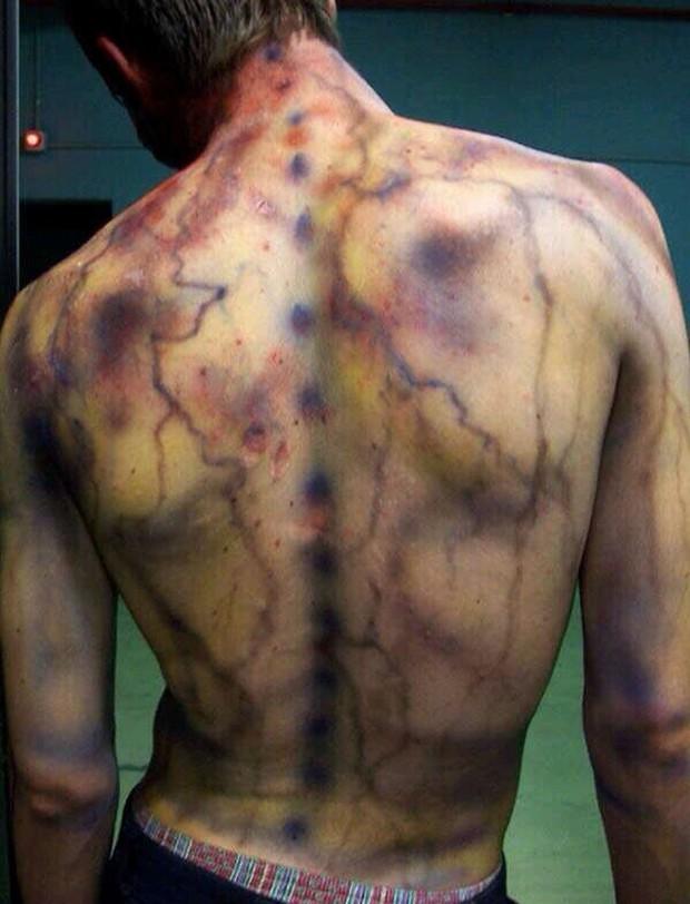 Kỳ lạ người đàn ông bị sét đánh 7 lần liên tục, cơ thể tổn thương từ bên ngoài đến nội tạng vẫn không chết, được người ta mệnh danh là vua lỳ đòn - Ảnh 5.