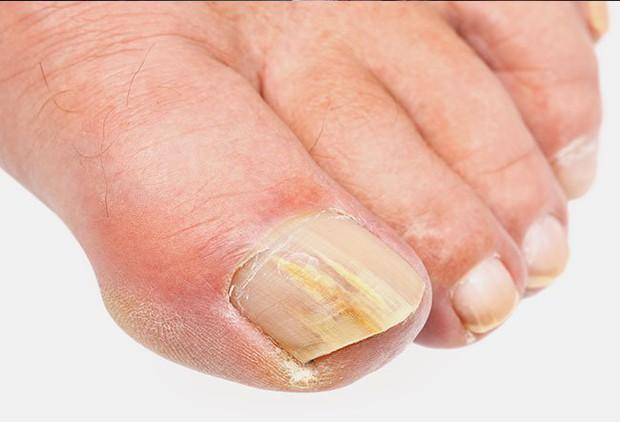 Những cơn ác mộng ở ngón chân và cách xử lý: Móng chọc vào thịt, nấm móng, móng đổi màu - Ảnh 1.
