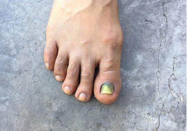 3 bất thường ở ngón chân đang cảnh báo bạn rằng tế bào ung thư đã bắt đầu thức dậy, cần đi khám ngay - Ảnh 2.