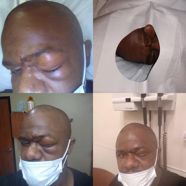 Võ sĩ bị nứt 5 chỗ ở hốc mắt sau cú đấm kinh hoàng, chính chủ đăng ảnh cập nhật tình hình mà khiến fan dựng tóc gáy - Ảnh 5.