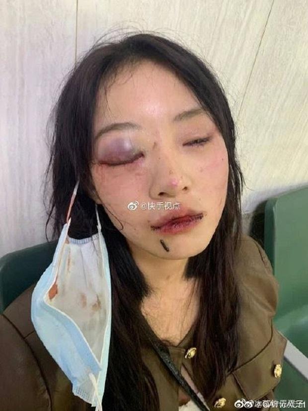 Nữ streamer xinh đẹp bất ngờ đăng tải hình ảnh máu me gây sốc, dân mạng nghi vấn bị bạn trai bạo hành? - Ảnh 2.