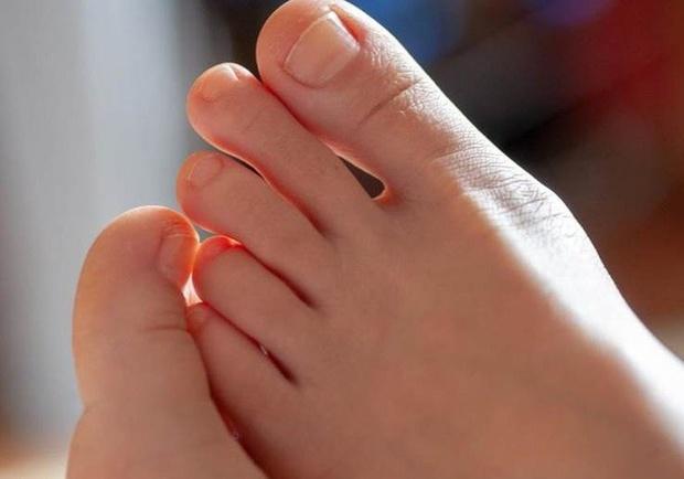 Nam giới có thận khỏe thường có 3 biểu hiện đặc trưng ở bàn chân, mong rằng bạn hội tụ tất cả - Ảnh 1.