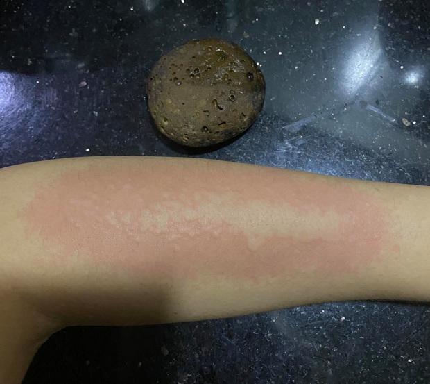 CẢNH BÁO: Hiểm họa khôn lường từ đá tắm tẩy da chết, chọn sai cách là hỏng da như chơi - Ảnh 7.