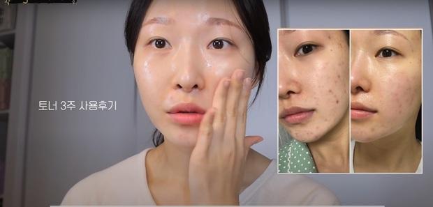 """Makeup artist người Hàn chia sẻ loạt sản phẩm đỉnh cao giúp cô """"cải tạo"""" làn da thâm mụn xấu xí trở nên căng mướt như phủ sương - Ảnh 7."""