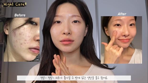 """Makeup artist người Hàn chia sẻ loạt sản phẩm đỉnh cao giúp cô """"cải tạo"""" làn da thâm mụn xấu xí trở nên căng mướt như phủ sương - Ảnh 1."""