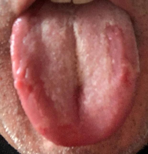 Triệu chứng mới của COVID xuất hiện ngày càng nhiều: 3 dấu hiệu nhận biết lưỡi COVID - Ảnh 1.