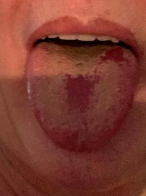 Triệu chứng mới của COVID xuất hiện ngày càng nhiều: 3 dấu hiệu nhận biết lưỡi COVID - Ảnh 3.