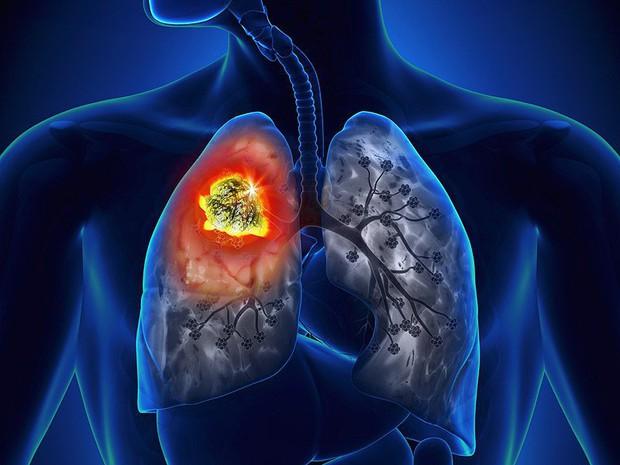 5 kiểu người có nguy cơ mắc ung thư phổi rất cao, xem ngay để chủ động phòng tránh - Ảnh 2.