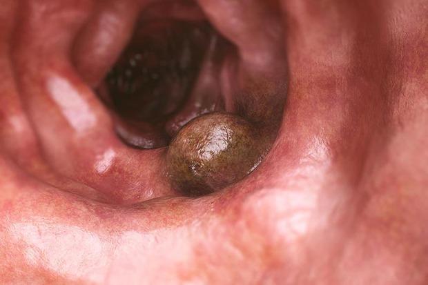 Nam giới nên chủ động đi kiểm tra 4 cơ quan sau đây thường xuyên để tầm soát nguy cơ mắc bệnh ung thư từ sớm - Ảnh 4.