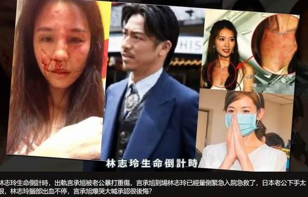 Lâm Chí Linh bị chồng bạo hành, sống như trong địa ngục vì không thể sinh con? - Ảnh 5.
