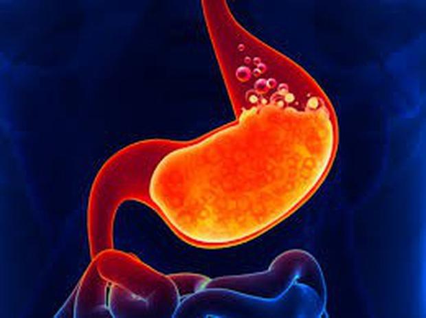 Cẩn thận với 3 triệu chứng xuất hiện trong ngày Tết ngầm cảnh báo dạ dày của bạn đang có vấn đề - Ảnh 1.