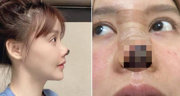 Nữ diễn viên Trung Quốc phẫu thuật thẩm mỹ tới nỗi rụng cả mũi, ngượng không dám thò mặt ra đường - Ảnh 1.