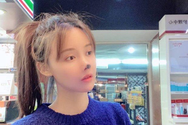 Nữ diễn viên Trung Quốc phẫu thuật thẩm mỹ tới nỗi rụng cả mũi, ngượng không dám thò mặt ra đường - Ảnh 3.