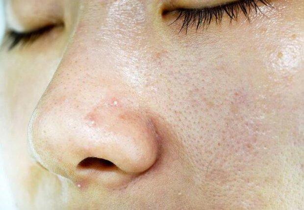 Cơ thể có 4 loại bất thường chứng tỏ estrogen đang không đủ, ăn thêm 4 thứ để dưỡng da, giảm nếp nhăn - Ảnh 3.