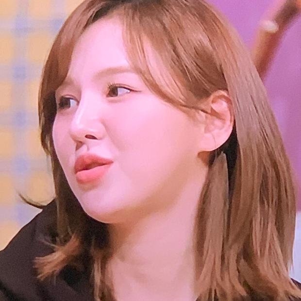 """Wendy (Red Velvet) """"đại náo"""" tạp chí sau 1 năm gặp tai nạn kinh hoàng ở SBS Gayo: Mặt biến dạng, nhưng visual vẫn gây bão MXH - Ảnh 8."""