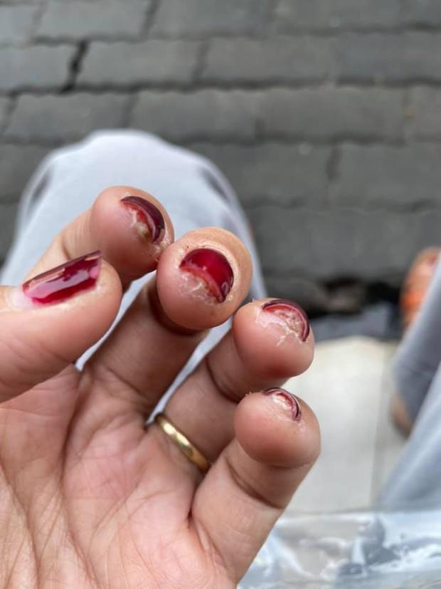 Trước Tết thi nhau khoe nail sang chảnh, ra Tết lại kể khổ vì móng nham nhở như chuột gặm: Ai làm nail cũng chịu trận cảnh này thôi! - Ảnh 6.
