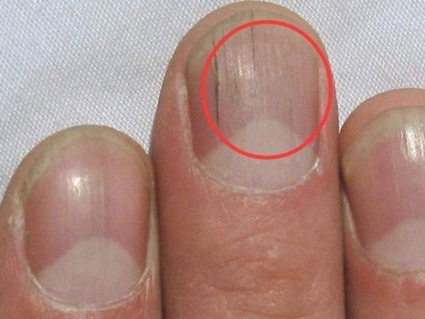 3 bộ phận trên cơ thể chuyển dần sang màu thâm đen chứng tỏ gan đang có vấn đề - Ảnh 2.