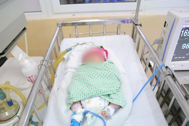 Hà Nội: Thương tâm bé sơ sinh bị bỏ rơi ở Long Biên trong tình trạng suy hô hấp, nhiễm trùng sơ sinh và đa dị tật - Ảnh 1.