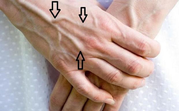 5 tín hiệu trên đôi bàn tay ngầm cảnh báo tế bào ung thư gan đã gõ cửa, cần chủ động kiểm tra ngay - Ảnh 1.