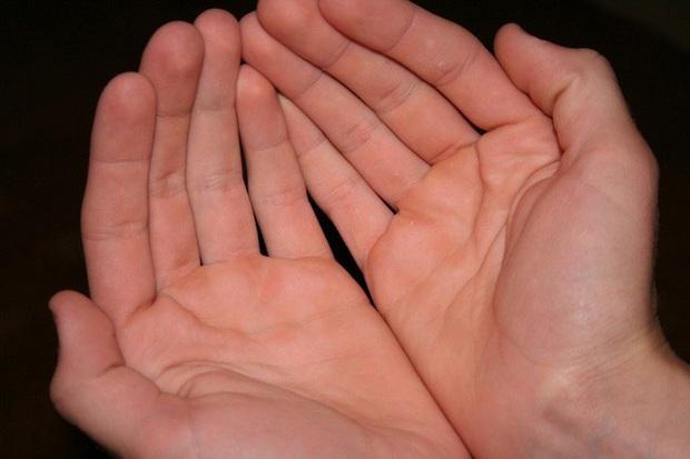 5 tín hiệu trên đôi bàn tay ngầm cảnh báo tế bào ung thư gan đã gõ cửa, cần chủ động kiểm tra ngay - Ảnh 3.