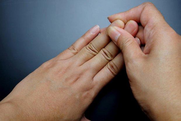 5 tín hiệu trên đôi bàn tay ngầm cảnh báo tế bào ung thư gan đã gõ cửa, cần chủ động kiểm tra ngay - Ảnh 4.