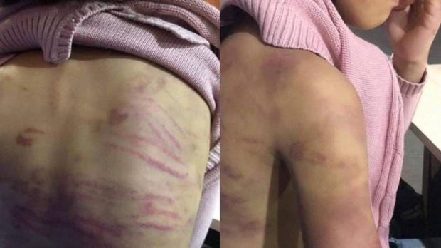 Khởi tố bị can vụ cháu bé 12 tuổi bị mẹ bạo hành, người tình của mẹ cưỡng bức - Ảnh 1.