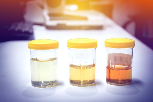 Đi vệ sinh thấy 3 vấn đề này thì chứng tỏ gan đang kêu cứu thảm thiết! - Ảnh 3.