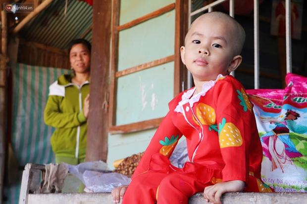 Chồng mất, con gái 3 tuổi mắc ung thư, người phụ nữ ngã quỵ khi chạy khắp xóm không mượn đủ 1 triệu đưa con nhập viện - Ảnh 2.