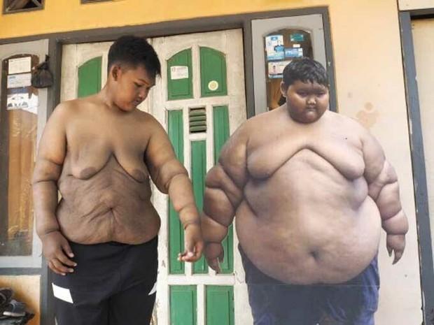 Cậu bé béo nhất thế giới nặng gần 200kg gây choáng với ngoại hình mới chỉ sau 4 năm giảm cân, nhìn hình không ai dám tin là cùng một người - Ảnh 9.