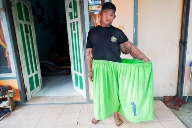 Cậu bé béo nhất thế giới nặng gần 200kg gây choáng với ngoại hình mới chỉ sau 4 năm giảm cân, nhìn hình không ai dám tin là cùng một người - Ảnh 10.