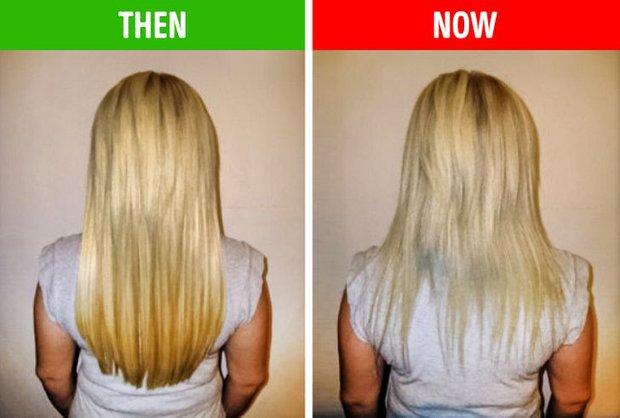 8 điều bất thường trên mái tóc ngầm cảnh báo nhiều vấn đề sức khỏe mà bạn chẳng hay biết - Ảnh 3.
