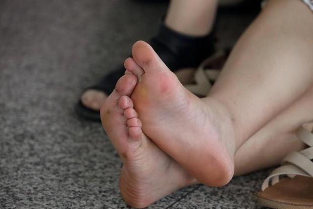 Gan xấu thì chân sẽ xuất hiện 3 vấn đề bất thường, nếu không có thì xin chúc mừng vì gan bạn vẫn ổn - Ảnh 1.