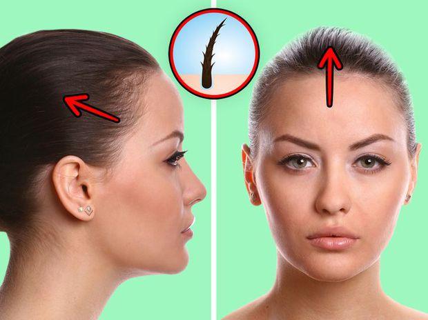 6 vấn đề sức khỏe mà con gái phải đối mặt nếu duy trì thói quen buộc tóc đuôi ngựa thường xuyên - Ảnh 2.