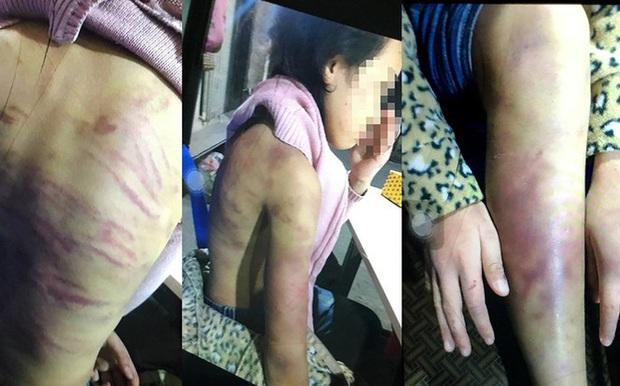 Đề xuất đưa bé gái 12 tuổi bị bạo hành, xâm hại tình dục vào trung tâm bảo trợ - Ảnh 1.