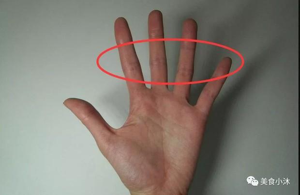 Những người gan tốt thường không có 3 biểu hiện này trên tay, kiểm tra ngay để nắm được tình hình sức khỏe - Ảnh 3.