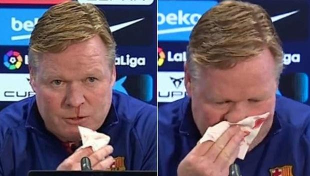 Thầy Messi bất ngờ chảy máu mũi trong lúc họp báo, nguyên nhân xuất phát từ căn bệnh nguy hiểm - Ảnh 1.