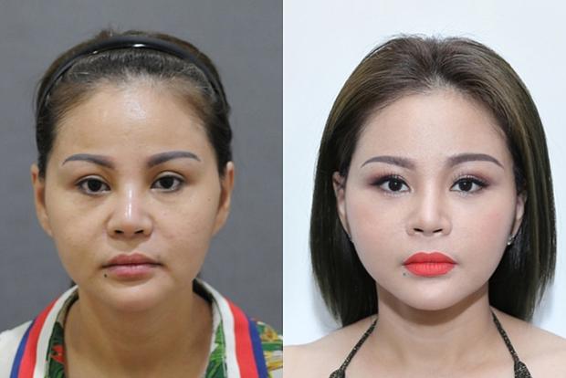 Nữ hoàng dao kéo Lê Giang kể về kỉ lục phẫu thuật thẩm mỹ: Tôi sửa mũi 10 lần, mắt 1 lần, cằm 2 lần, lấy cả sụn tai đắp vào mũi - Ảnh 2.