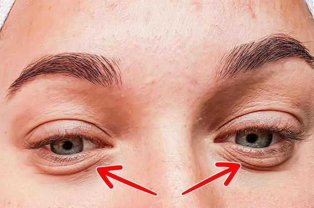8 dấu hiệu trên khuôn mặt cho thấy bạn đang bắt đầu lão hóa nhanh hơn - Ảnh 7.