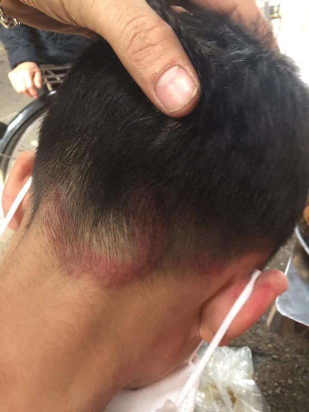 Hình ảnh cháu bé bị bố ruột bạo hành, đánh đập dã man tại Hà Nội khiến dân mạng phẫn nộ - Ảnh 3.