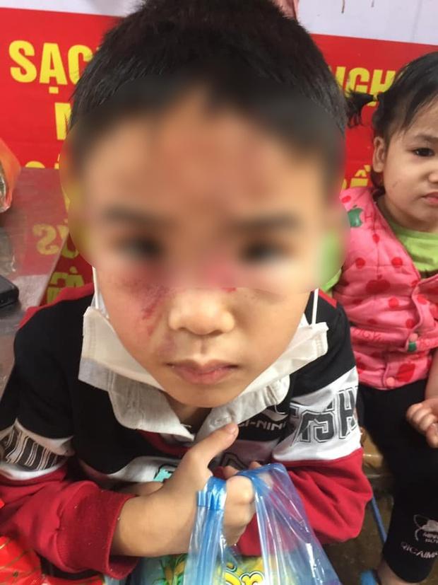 Hình ảnh cháu bé bị bố ruột bạo hành, đánh đập dã man tại Hà Nội khiến dân mạng phẫn nộ - Ảnh 2.