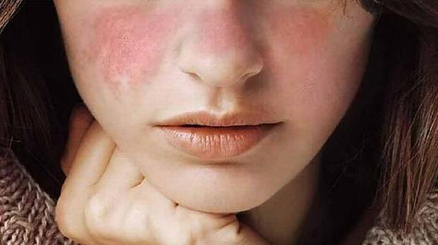 Người có phổi xấu đa phần sẽ thấy 3 biểu hiện đặc trưng trên khuôn mặt, nếu không có thì xin chúc mừng bạn - Ảnh 2.
