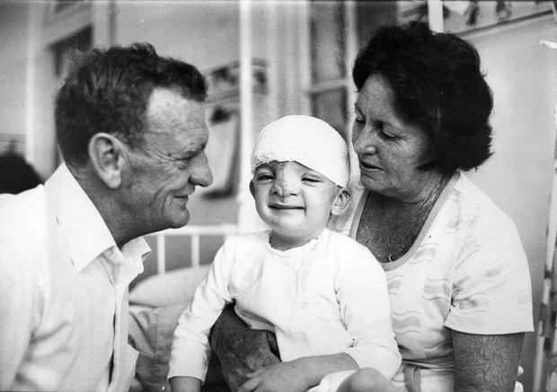 Sinh ra đã mang ngoại hình quái vật, người mẹ chỉ mong con chết đi, không ai ngờ hàng chục năm sau đứa trẻ khiến thế giới phải kinh ngạc - Ảnh 3.