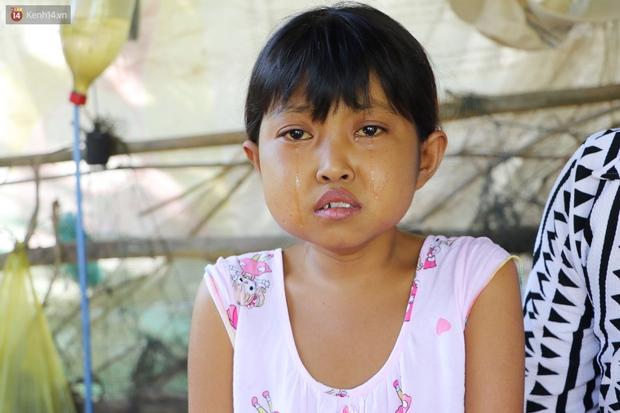 Nước mắt người mẹ có con gái bị teo gan, lá lách to đang chết mòn vì gia cảnh cùng cực: Chỉ sợ nó bỏ mình mà đi - Ảnh 9.