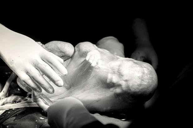 Cặp song sinh chào đời, 1 bé vẫn còn nguyên trong bọc ối - Ảnh 1.