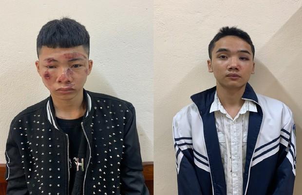 Một CSGT bị 2 thanh niên 17 tuổi phóng xe máy tông gãy xương chân tay, xương gò má - Ảnh 1.
