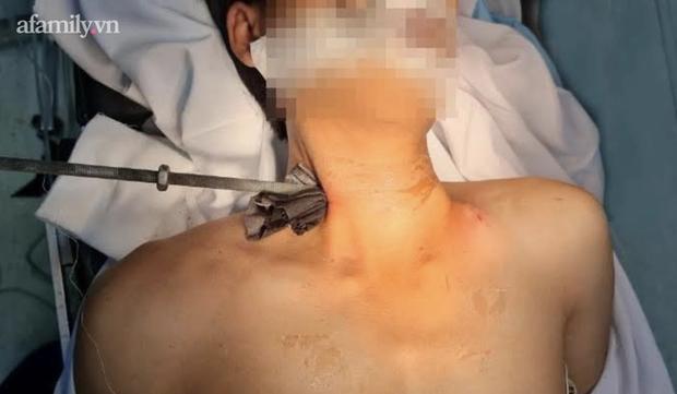 Tai nạn kinh hoàng: Đang sửa máy lạnh thì trượt chân, nam thanh niên bị thanh sắt dài 30cm đâm xuyên cổ nguy kịch - Ảnh 1.