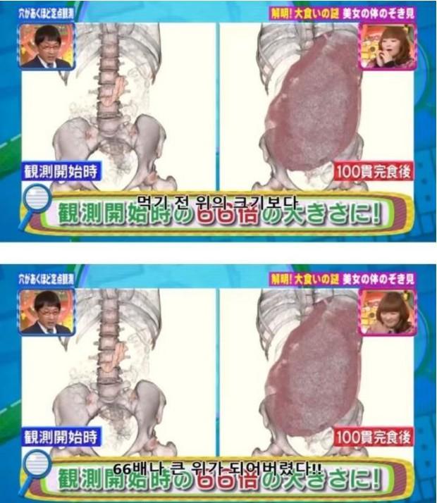 Ăn 100 miếng sushi cùng lúc, nữ YouTuber gây sốc khi công khai luôn ảnh chụp CT dạ dày, chứng minh mình không gian dối - Ảnh 3.