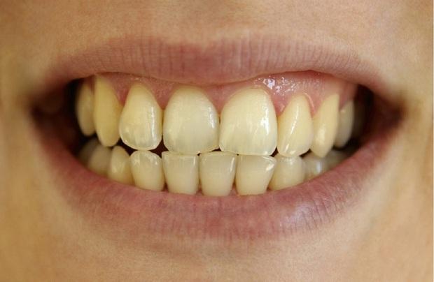 3 nguyên nhân không ngờ khiến răng bị ố vàng, xỉn màu, kiểm tra xem bạn có đang mắc phải vấn đề nào không - Ảnh 1.